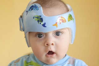 hbsv1jwx_plagiocephaly_photo.jpg